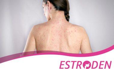 Symptoms & Causes of Chickenpox